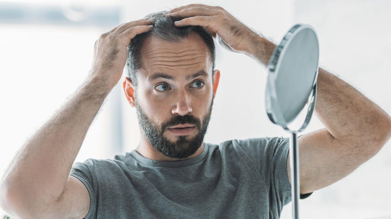 Haarausfall: Ein junger Mann betrachtet sich im Spiegel. Er trägt einen 3-Tage-Bart und untersucht lichter werdende Stellen seiner Kopfbehaarung.