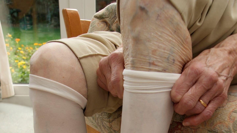Tiefe Venenthrombose (TVT): Eine ältere Fau sitzt auf einem Sessel und zieht sich einen Kompressionsstrumpf über das linke Bein. Das andere Bein ist bereits bis unter das Knie mit einem solchen Strumpf bedeckt.