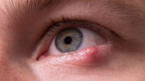 Ein Gerstenkorn haftet an einem Augenlid.