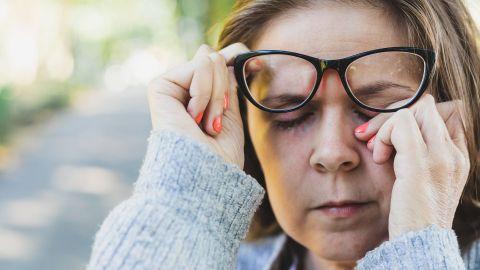 Augenlidentzündung: Eine Frau, die eine Brille trägt, schiebt die Brille mit einer Hand leicht nach oben und fasst sich mit der anderen Hand ans geschlossene Auge.
