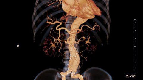 Bauchaortenaneurysma: das Farbbild einer menschlichen Bauchschlagader (Aorta).
