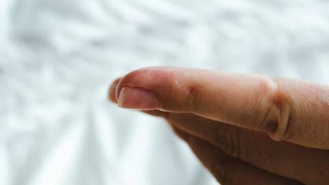 Zu sehen ist ein Zeigefinger mit mehreren zusammenhängenden Bläschen.