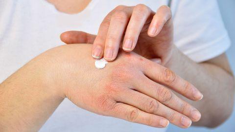Eine Person mit Neurodermitis cremt ihre Hand ein.
