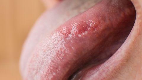 Mann pilzerkrankung beim Pilzinfektion am