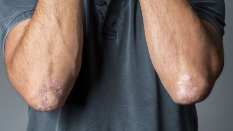 Psoriasis: Ein Mann beugt seine Arme so an den Oberkörper, dass seine Ellbogen zu sehen sind. An beiden Ellbogen befindet sich Schuppenflechte.