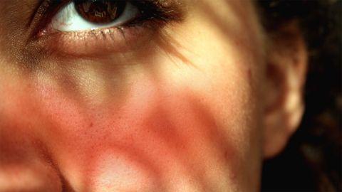 Rosazea: Die Wange einer Frau ist leicht geörtet. In ihrem Auge sind rote Äderchen zu sehen.