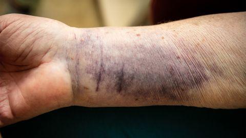 Senile Purpura: Das Handgelenk einer älteren Person weist einen großflächigen blau-violetten Flecken auf.