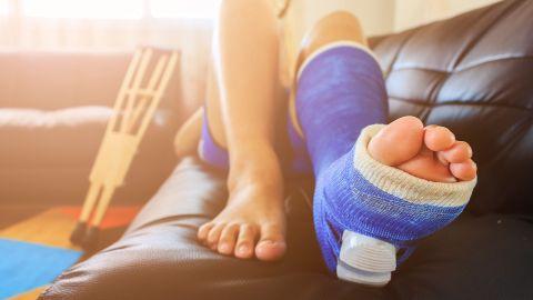 Sprunggelenkbruch: Ein sportlich gekleidete Frau liegt auf einer Couch, das linke Bein ist fast bis auf Kniehöhe eingegipst.