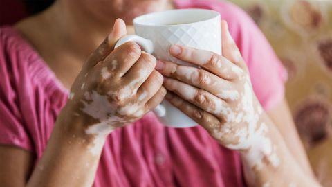 Vitiligo: Eine Frau hält eine Tasse mit beiden Händen. Ihre ansonsten pigmentierte Haut hat weisse Flecken an Händen und Unterarmen.