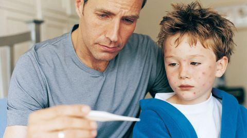 Windpocken: Ein Junge, in dessen Gesicht einige Stellen mit rötlichem Hautausschlag sichtbar sind, lehnt sich an die Schulter eines Mannes, der neben dem Kind sitzt. Der Mann hält ein Fieberthermometer in der Hand, auf das er und der Junge schauen.