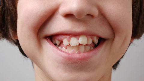Zahn- und Kieferfehlstellungen: Ein Junge zeigt lächelnd sein Gebiss. Viele seiner Zähne sind krumm und haben eine Fehlstellung.